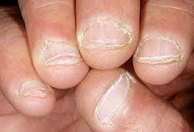 onicofagia, comerse las uñas compulsivamente